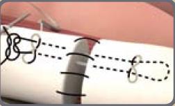Reparación tendón flexor con supramid
