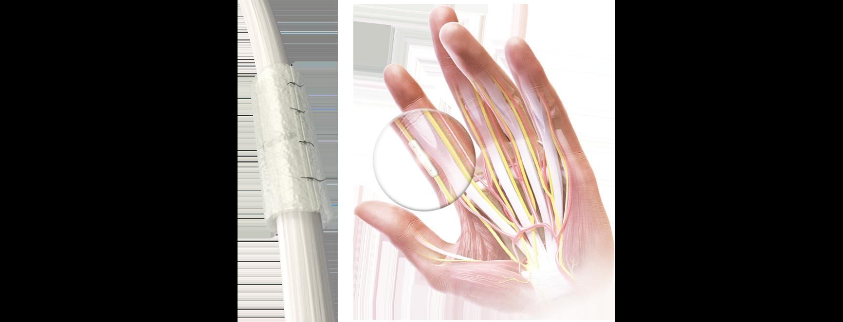 Regenerador del conducto nervioso