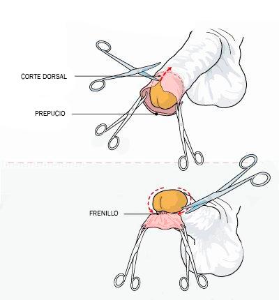 Nuevas técnicas quirúrgicas: las grapadoras de circuncisión