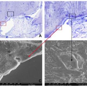 Incorporación de un aloinjerto de hueso cortical